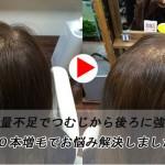女性の薄毛のお悩み