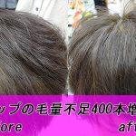 増毛の魅力は、自然な仕上がりを手に入れられること!