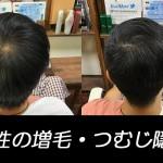男性の増毛施術例
