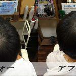 船橋で薄毛の悩みなら|千葉駅近くの増毛が出来るヘアーサロンEVERへ