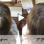 髪の悩みは、様々です。AGAや抜毛症、びまん性脱毛症