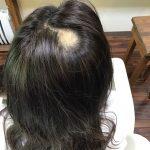 円形脱毛症の最新治療