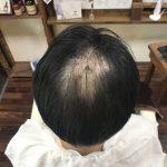 男性の脱毛症に多い症例