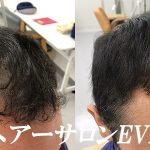 増毛とは、ただ髪の毛を増やす事ではない。